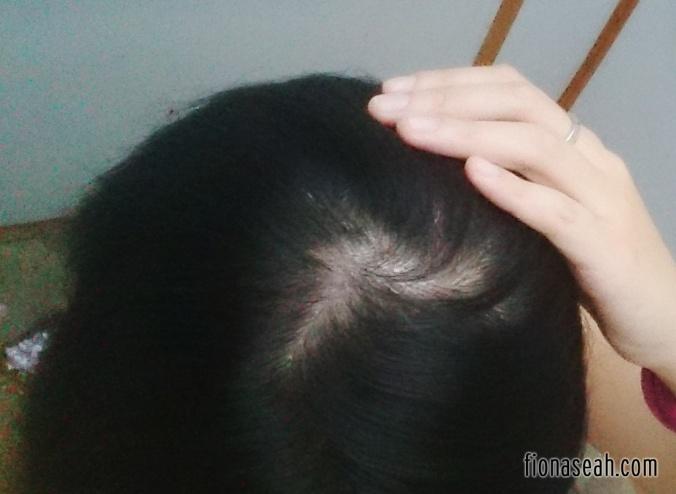 plantur-my-poor-poor-scalp-2