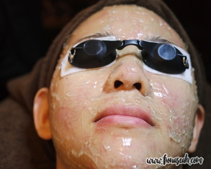 After Acne IPL