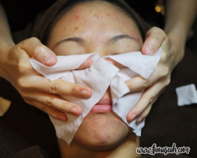My face being cleaned with a wipe after extraction