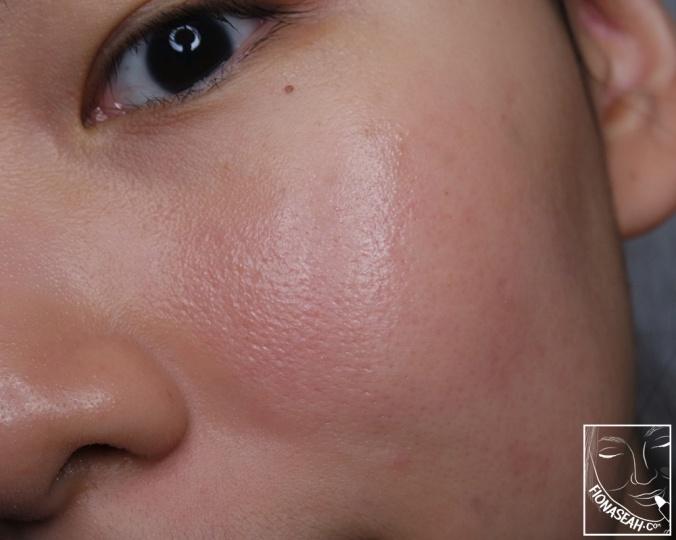 Pores exfoliated