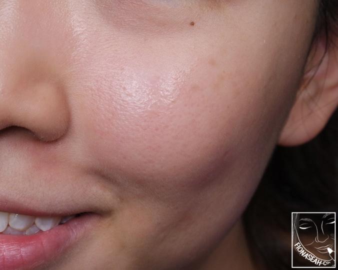 Pores tightened