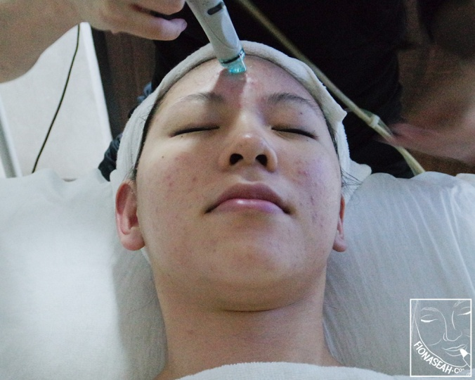 HydraFacial (Extraction)