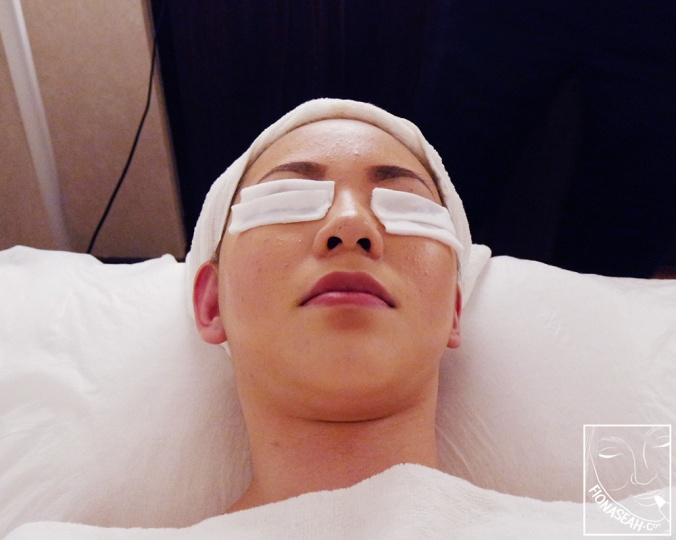 Individualised Acne Treatments at The Clifford Clinic: Hydrafacial +