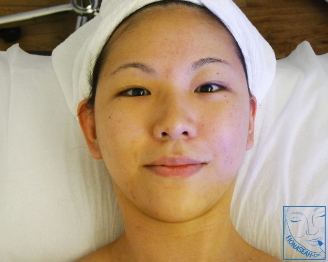 Can I interest you with pictures taken during my second HydraFacial session?