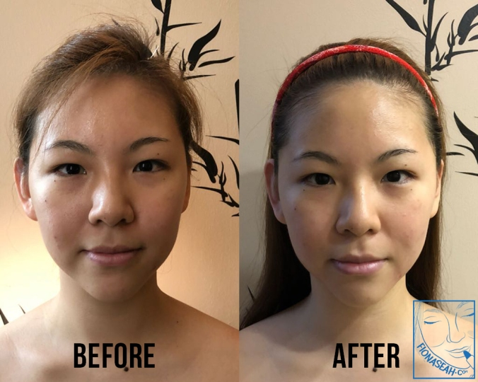 My before and after! Sharper chin, more defined forehead (Courtesy of Facia Ginza)