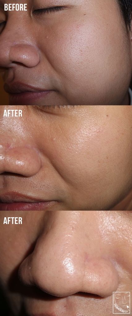 The result of all those magic that was done on his face - NO MORE BLACKHEAD. I was so amazed! His nose was SPOTLESS for the first time