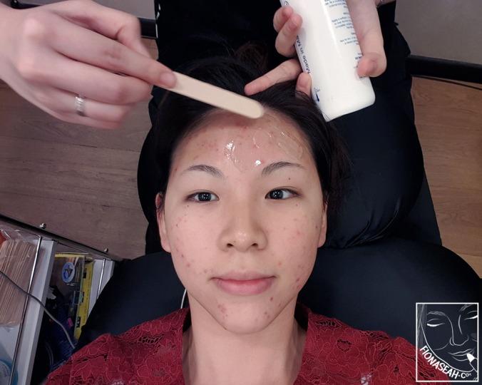 Applying electrode gel