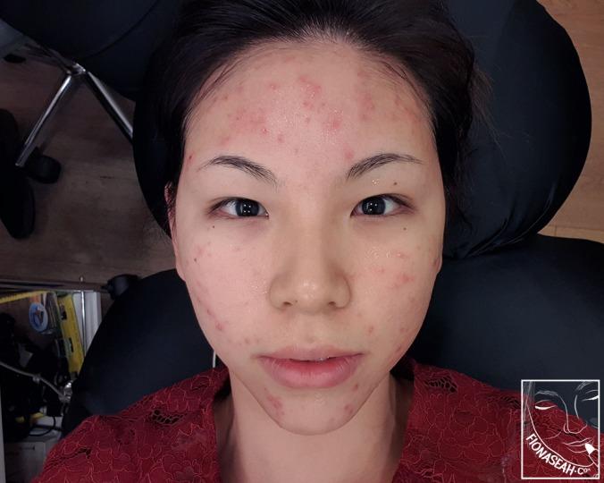 Face became slightly redder
