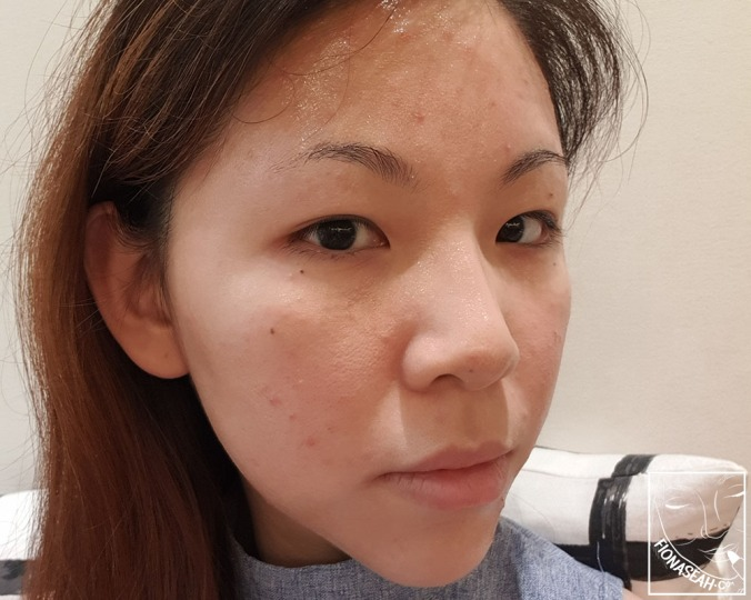 Bumpy face 2 weeks after stopping oral medication