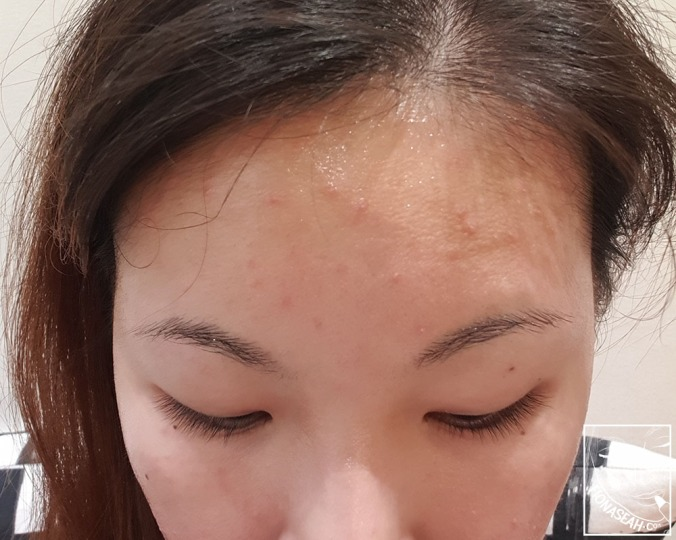 Bumpy forehead (and my thinning hair)