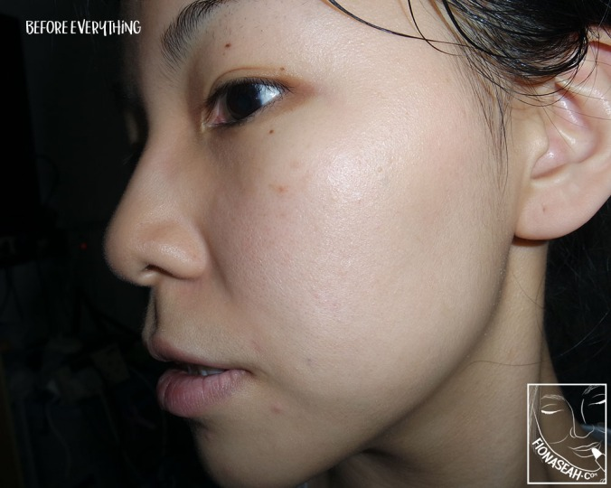 Here's my bare face before using both APRILSKIN products - right profile