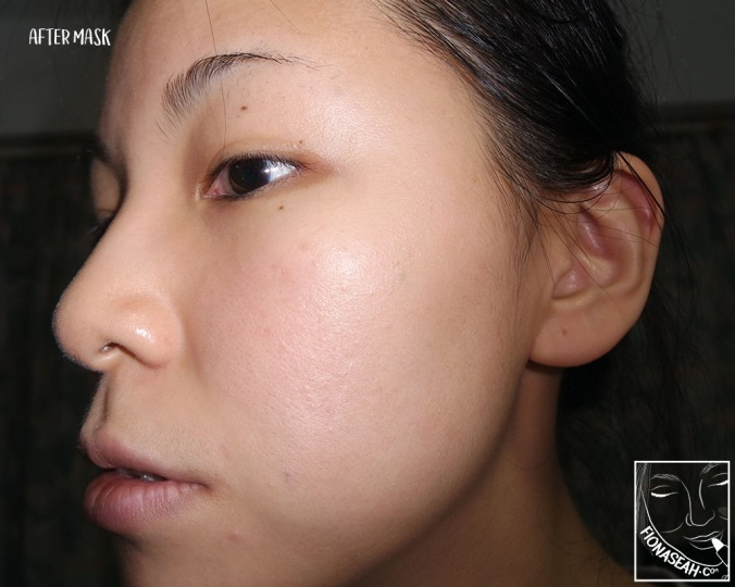 After removal of mask - side profile