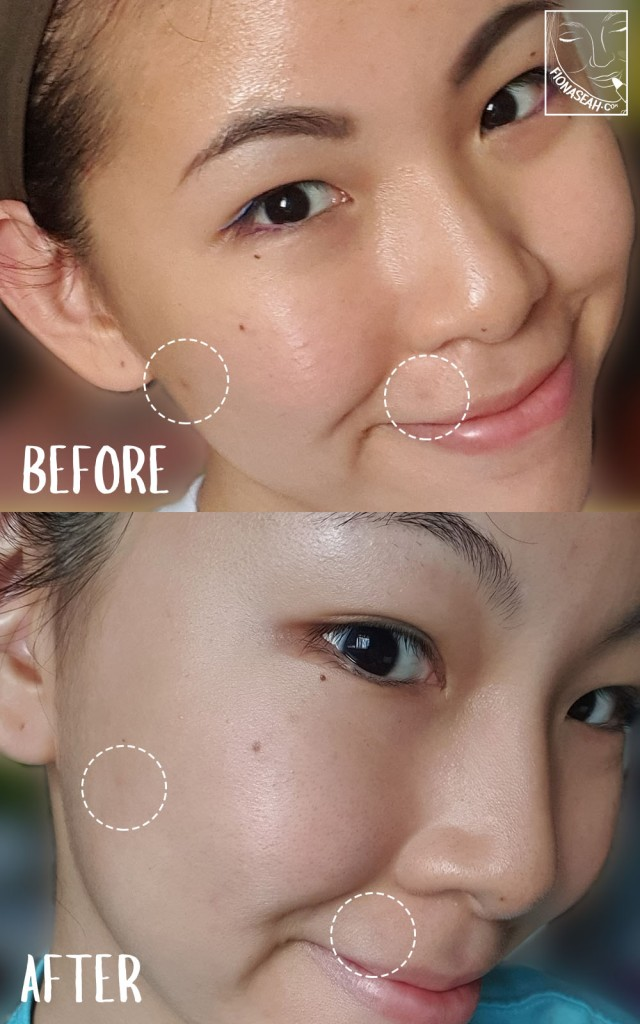 Before (taken on 30 June 2020) and after (taken on 7 July 2020) using NALC All-in-One Moisturizer!