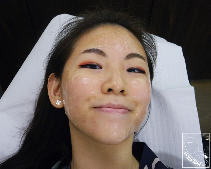 A picture showing my entire face slathered with cooling gel that was taken during my second session!
