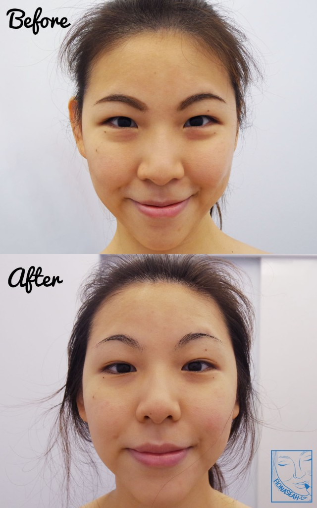 Before and After: skin feels more rejuvenated, less congested